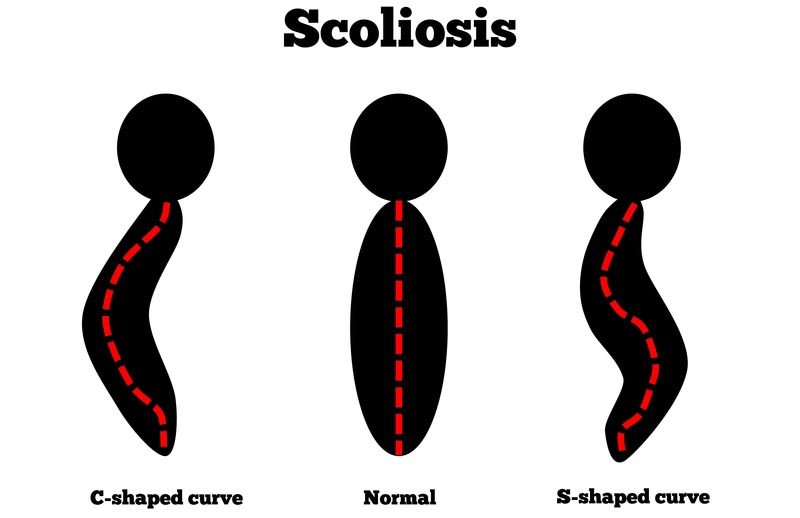 San Diego, CA scoliosis treatment